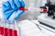 Չինացի գիտնականները գտել են կորոնավիրուսը բուժելու նոր միջոց (Gazeta.ru)