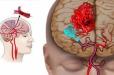 Տնական միջոց՝ գլխուղեղի արյան շրջանառությունը բարելավելու համար